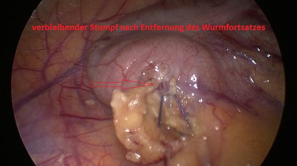 Appendixstumpf nach Entfernung Wurmfortsatz, Blinddarm