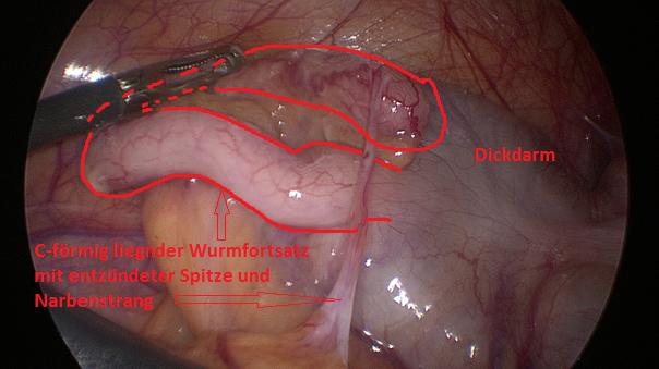 Appendizitis, Entzündung Wurmfortsatz, Blinddarm