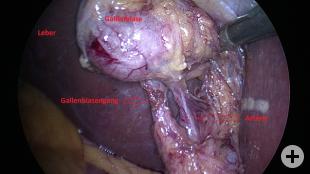 Gallenblase, Anatomie