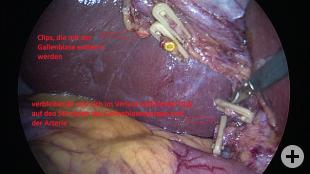 Gallenblase mit Clips